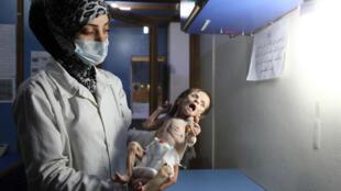 Esta imagem do dia 21/10/17 mostra um bebê nascido em um subúrbio de Damasco, com malnutrição extrema.