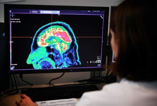 Imagen de un cerebro humano realizada con un escáner, el 9 de enero de 2019 en Brest, oeste de Francia