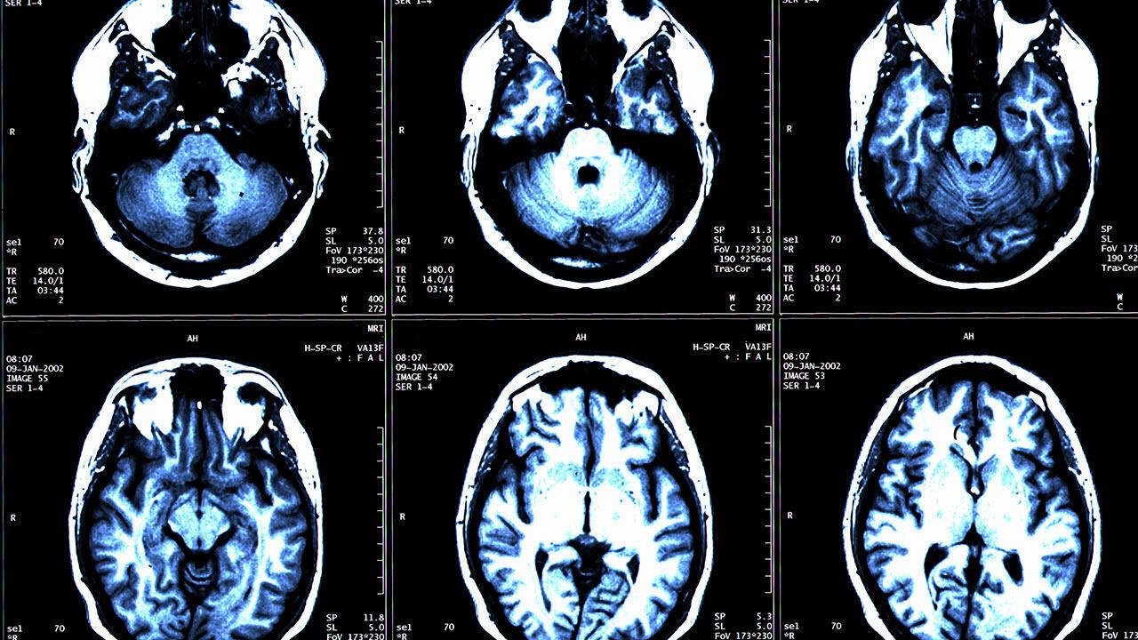 illustration cerveau sclérose en plaques