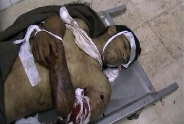 A still image taken from an amateur video on Friday shows a body in a hospital in Deraa