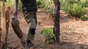 La plupart des prothèses pour les victimes sont fabriquées puis posées à Bissau et non à Ziguinchor.