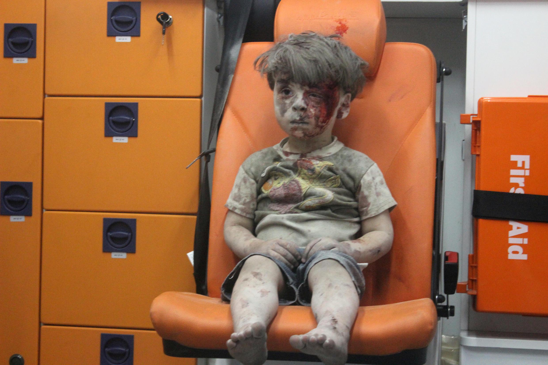 O menino sírio Omran, de quatro anos, completamente apático depois de ser ferido em um bombardeio na quarta-feira (17) em Aleppo.