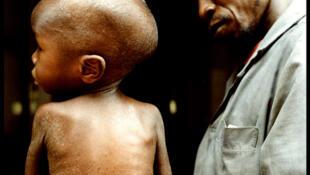 Jeune garçon en consultation à Niamey au Niger. La malnutrition est la cause sous-jacente de 35% des décès infantiles.