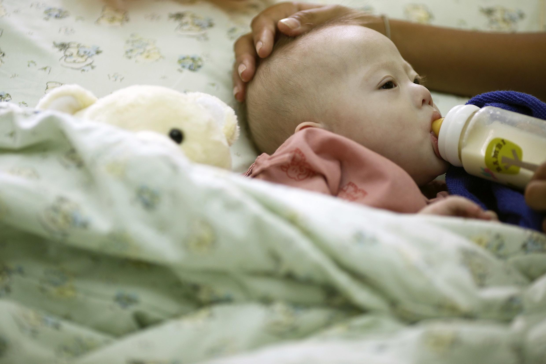 Casal australiano nega ter abandonado Gammy (foto), que nasceu com Síndrome de Down e problemas cardíacos e pulmonares.