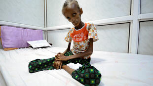Saida Ahmad Baghili, 18, who is affected by severe acute malnutrition, sits on a bed at the al-Thawra hospital in the Red Sea port city of Houdieda, Yemen October 24, 2016