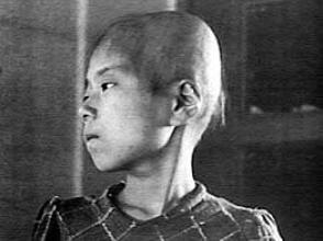 Fillette de 11 ans qui avait perdu ses cheveux plus d'une semaine après l'explosion d'Hiroshima. Elle se trouvait dans une maison en bois à 2 km de l'hypocentre.