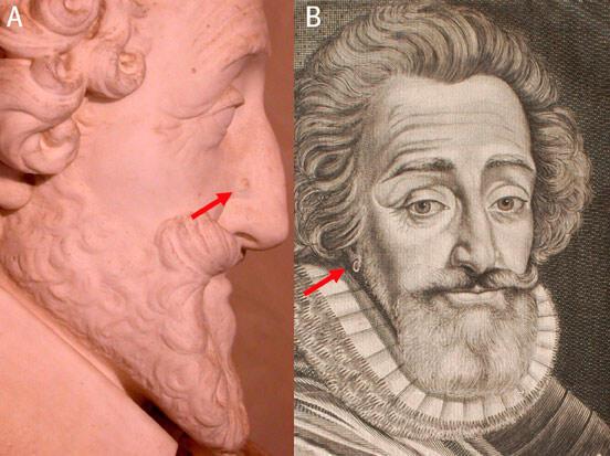 La tête retrouvée a été comparée à ces deux portraits d'Henri IV. A gauche, on constate une lésion latérale au niveau du nez et à droite, le port d'une boucle d'oreille.