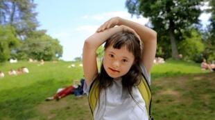 La trisomie 21 ou syndrome de Down est provoquée par une anomalie génétique.