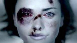 Une victime de violences physiques