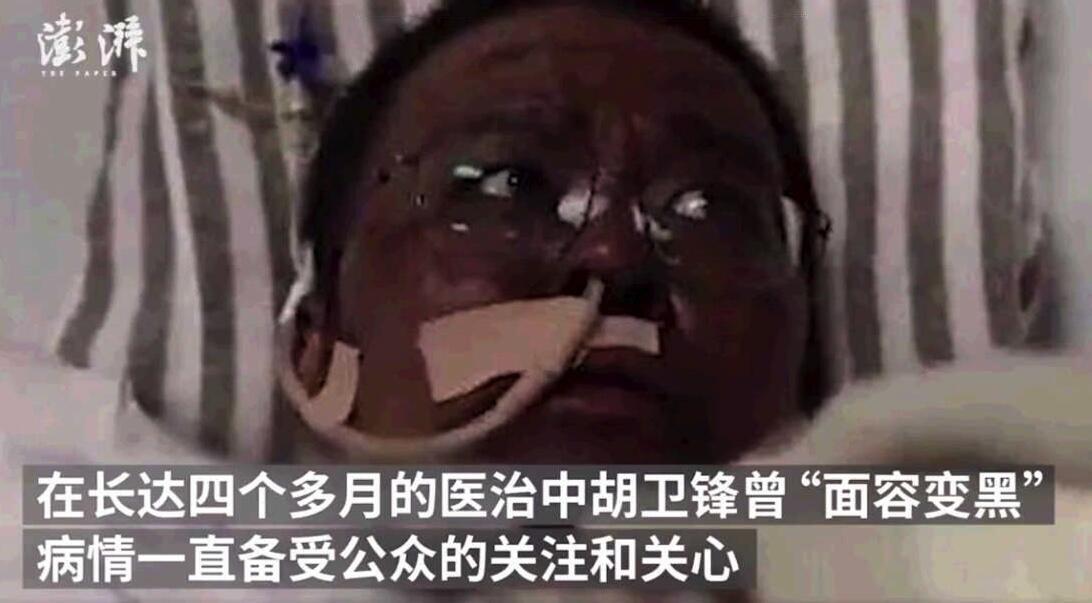 Ảnh chụp từ màn hình vidéo cho thấy da mặt bác sĩ Trung Quốc Hồ Vệ Phong (Hu Weifeng) bị đen sạm sau khi bị nhiễm virus corona.