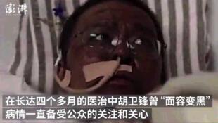 Capture d'écran d'une vidéo montrant le docteur Hu Weifeng, la peau assombrie, après avoir été atteint du Covid-19.