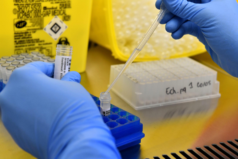 Впервые за несколько месяцев во Франции заболеваемость COVID-19 начала расти.