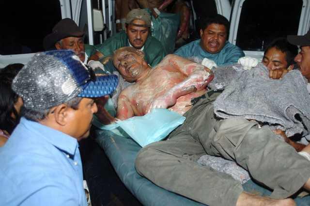 Ferido é levado em uma maca para o hospital de Tegucigalpa, em Honduras.