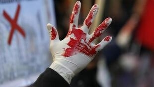 A Tamil demonstrator holds up a hand as they wear a glove covered with fake blood during a protest in London in 2013.