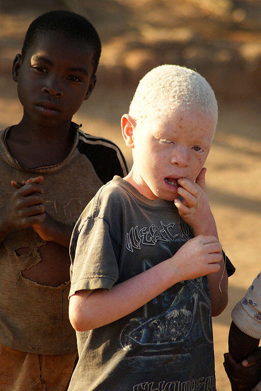 An albino boy and his friend in Luwerezi, Malawi