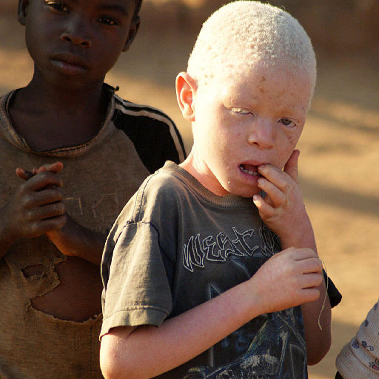 Death penalty handed down for three albino killers in Malawi