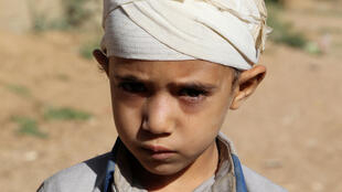 Imagem de arquivo de um menino que sobreviveu a um bombardeamento em Saada, no Iémen.4 de Setembro de 2018.