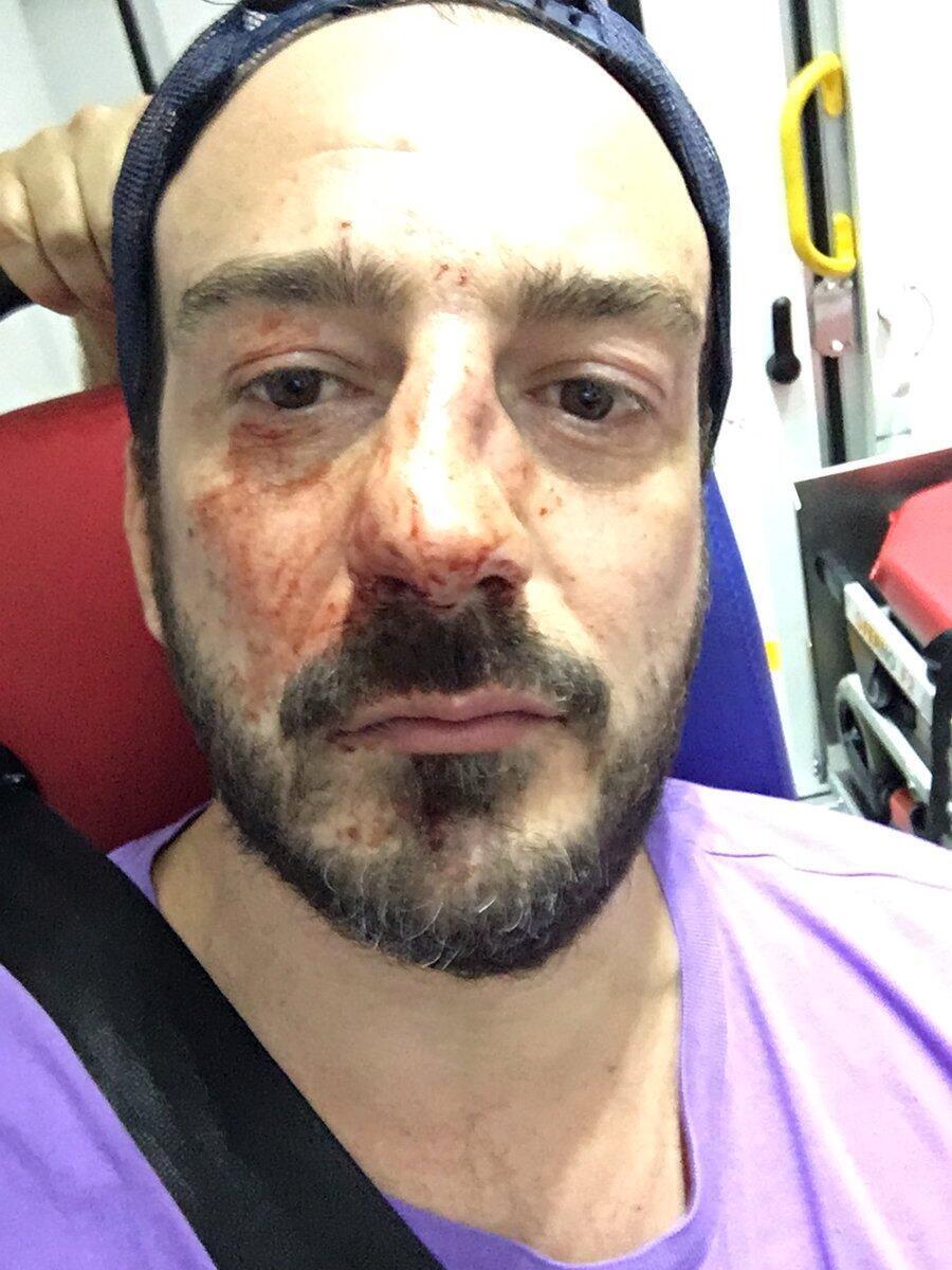 Основателю ассоциации в поддержку чеченских геев сломали нос на выходе из ресторана