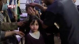 敘利亞杜馬鎮疑似遭化武襲擊,一男子為兒童做檢查,2018年4月8號
