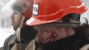 Раненый представитель прессы в Киеве 22/01/2014
