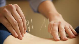 L'acupuncture est une des disciplines clés de la médecine chinoise.