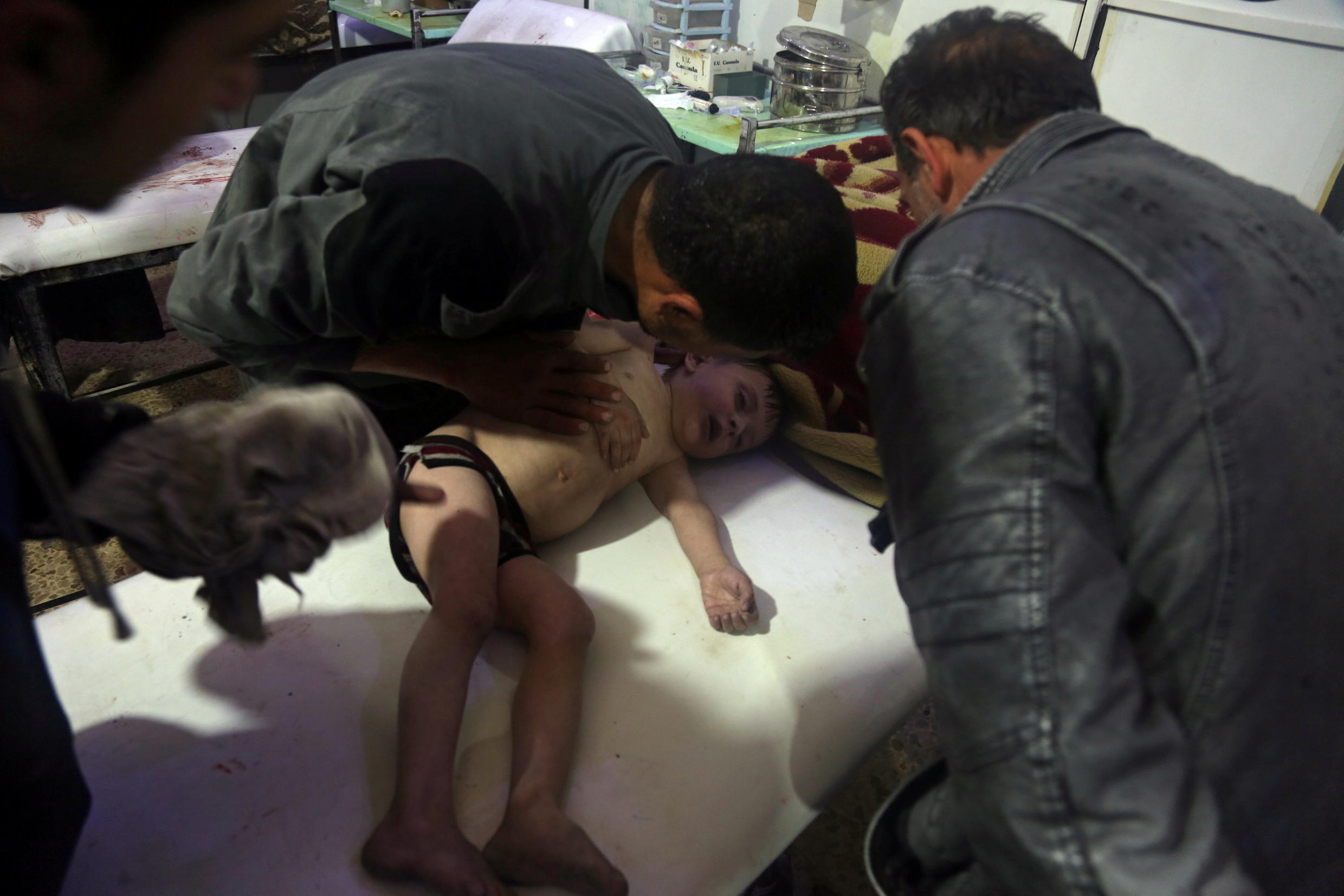 A child is treated in a hospital in Douma, eastern Ghouta in Syria, after what a Syria medical relief group claims was a suspected chemical attack April, 7, 2018.