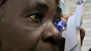 Une patiente soignée pour un glaucome.