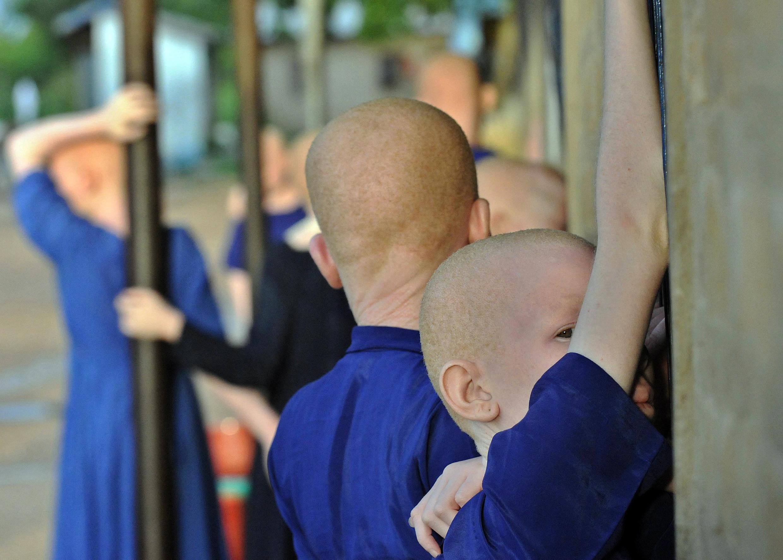 Les enfants albinos sont en danger dans beaucoup de pays d'Afrique.