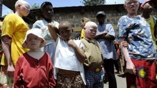 Des enfants de « la Maison des Albinos» à Ruyigi.