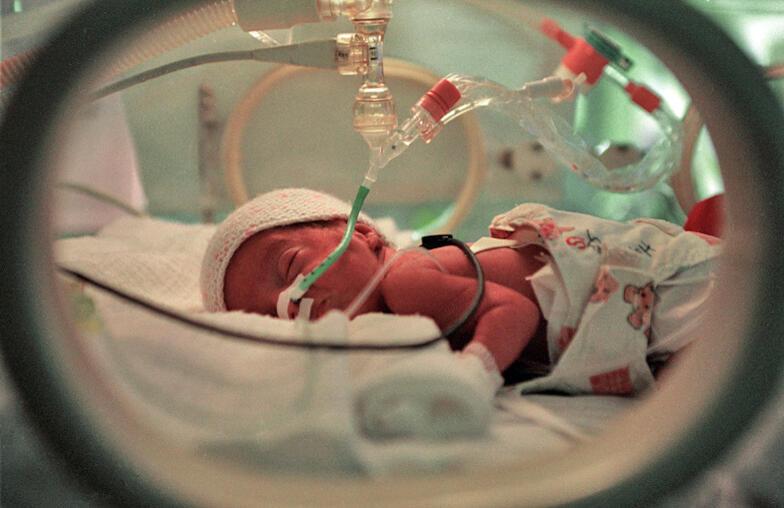 Un bebé prematuro en la incubadora