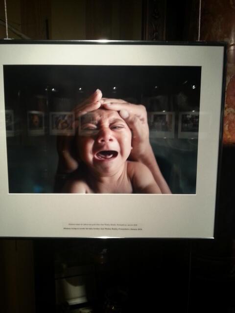 Criança com microcefalia devido ao vírus Zika, de Felipe Dana, exposição no fotojornalismo de Perpignan. RFI/João Mato