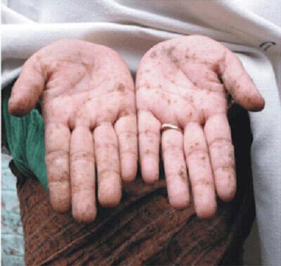 Lòng bàn tay nổi các nốt sần khi bị nhiễm độc asen. Ảnh báo trong nước