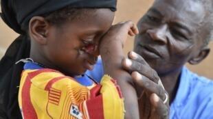 À Zinder, dans le sud du Niger, un membre de l'ONG suisse Sentinelles prodigue des soins à une petite fille atteinte du noma.