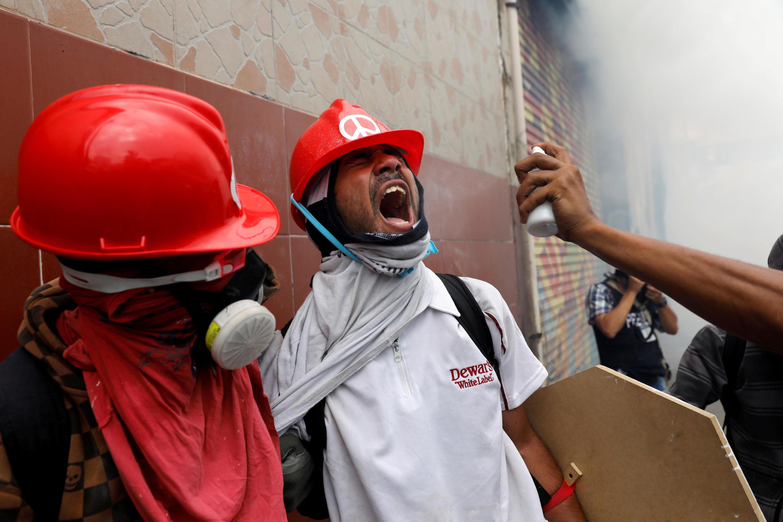 Một người biểu tình đang được chăm sóc mắt do trúng phải hơi cay của cảnh sát, Caracas, Venezuela, ngày 03/05/2017.