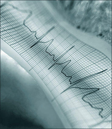 Electrocardiogramme.