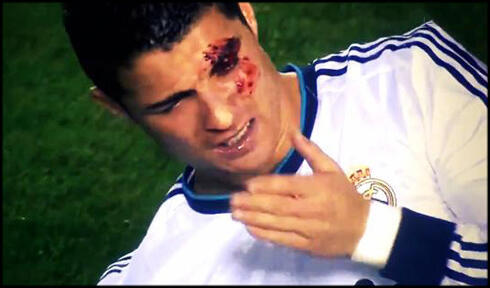 Altura da lesão de Ronaldo no jogo contra o Levante