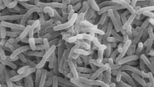 Vibrio cholerae: a bacteria que causa o cólera.