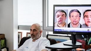 O professor Laurent Lantieri posa ao lado de tela que mostra as três estapas de enxertos de seu paciente