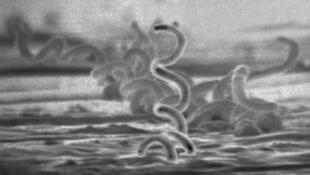 Le tréponème pâle, agent de la syphilis.