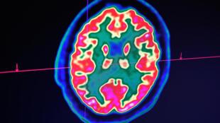 Imagen de un cerebro humano tomada con un escáner