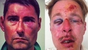 "Photos posted by Wilfred de Bruijn (L) and ""Sylvain"" on Facebook after the alleged attacks"