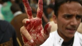 An anti-government protester flashes a bloodstained victory sign on Friday's demonstration