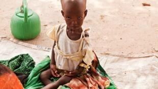 Kusan yara miliyan guda ke fama da rashin isasshen abinci mai gina jiki a Afrika.