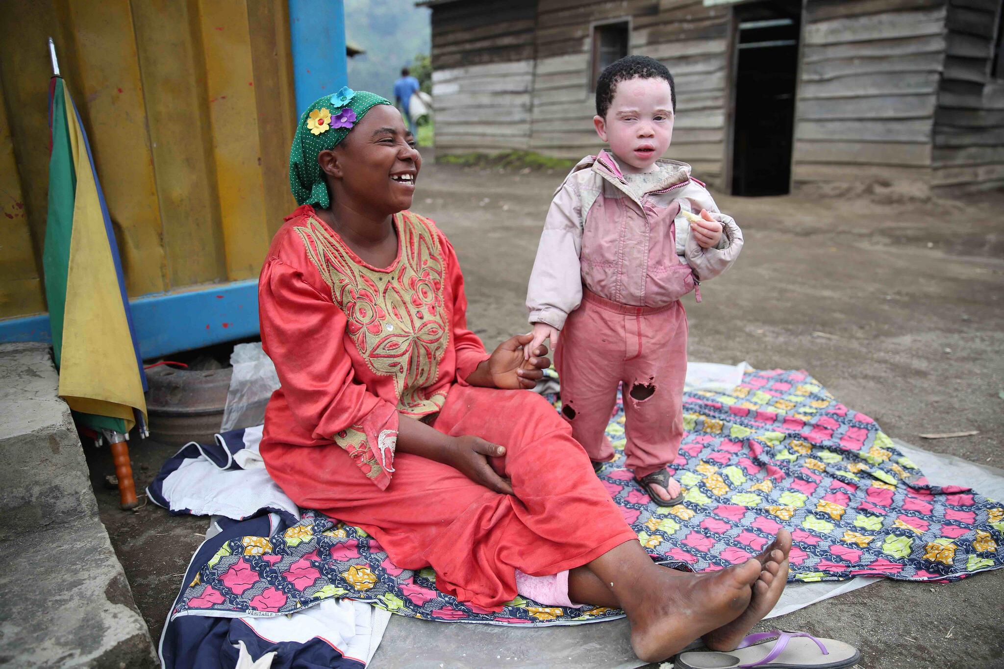 Nyabibale, Province du Nord Kivu, RD Congo : Une maman et son enfant albinos s'amusent. Aujourd'hui est célébrée la Journée internationale de sensibilisation à l'albinisme.