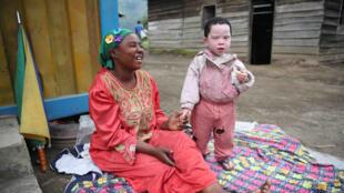 Nyabibale, Province du Nord Kivu, RD Congo : une maman et son enfant albinos s'amusent. Aujourd'hui, est célébrée la Journée internationale de sensibilisation à l'albinisme.