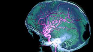 Arteriografía revelando la circulación sanguínea del cerebro.