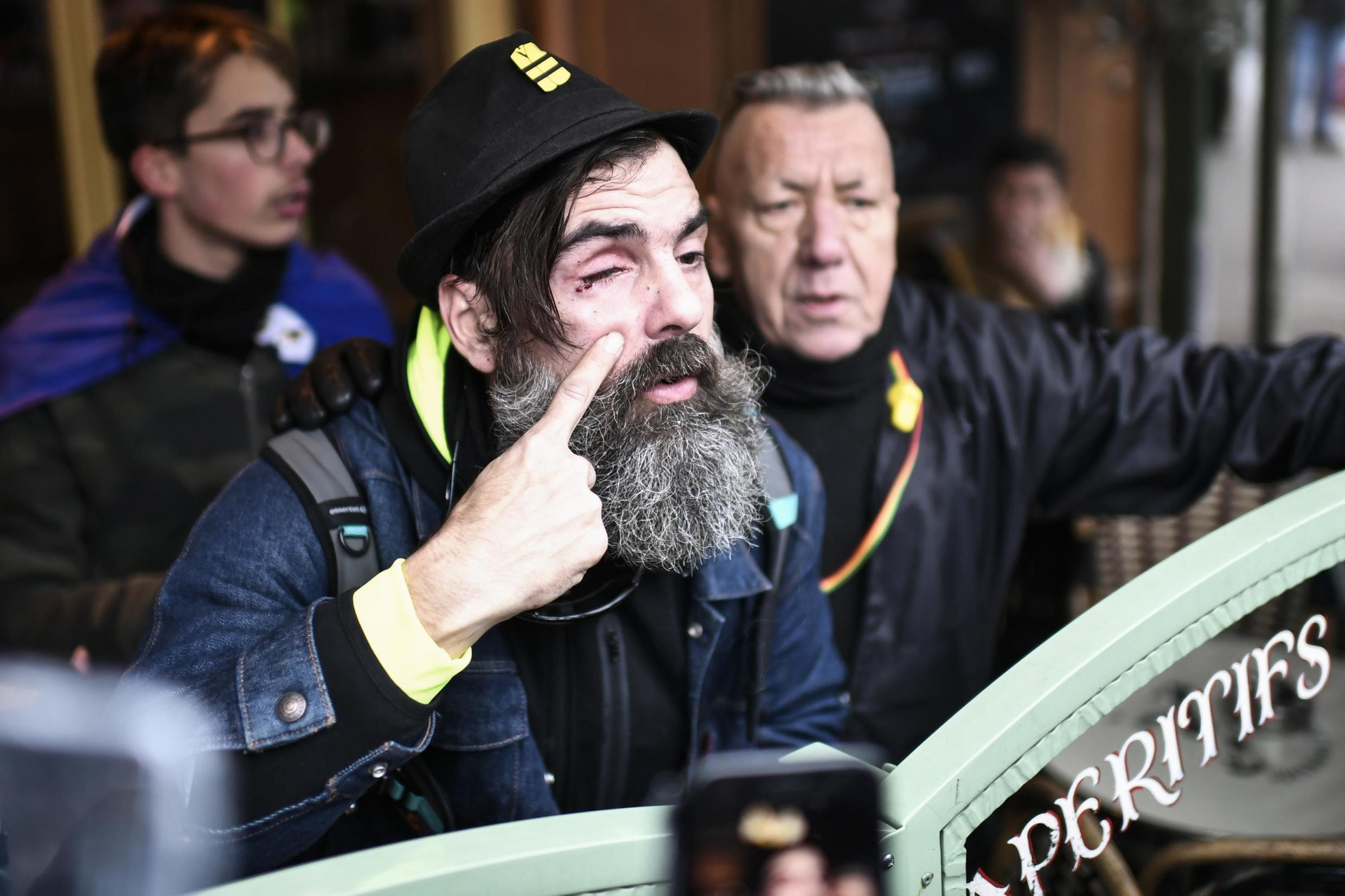 "Jerome Rodrigues, one of the leading figures of the ""yellow vests"" (gilets jaunes) movement shows his eye after he was injured in the eyebrow after he was hit by the shield of an anti-riot policeman on 28 December, 2019."