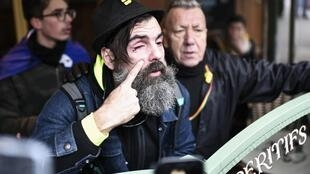 """Jerome Rodrigues, one of the leading figures of the """"yellow vests"""" (gilets jaunes) movement shows his eye after he was injured in the eyebrow after he was hit by the shield of an anti-riot policeman on 28 December, 2019."""