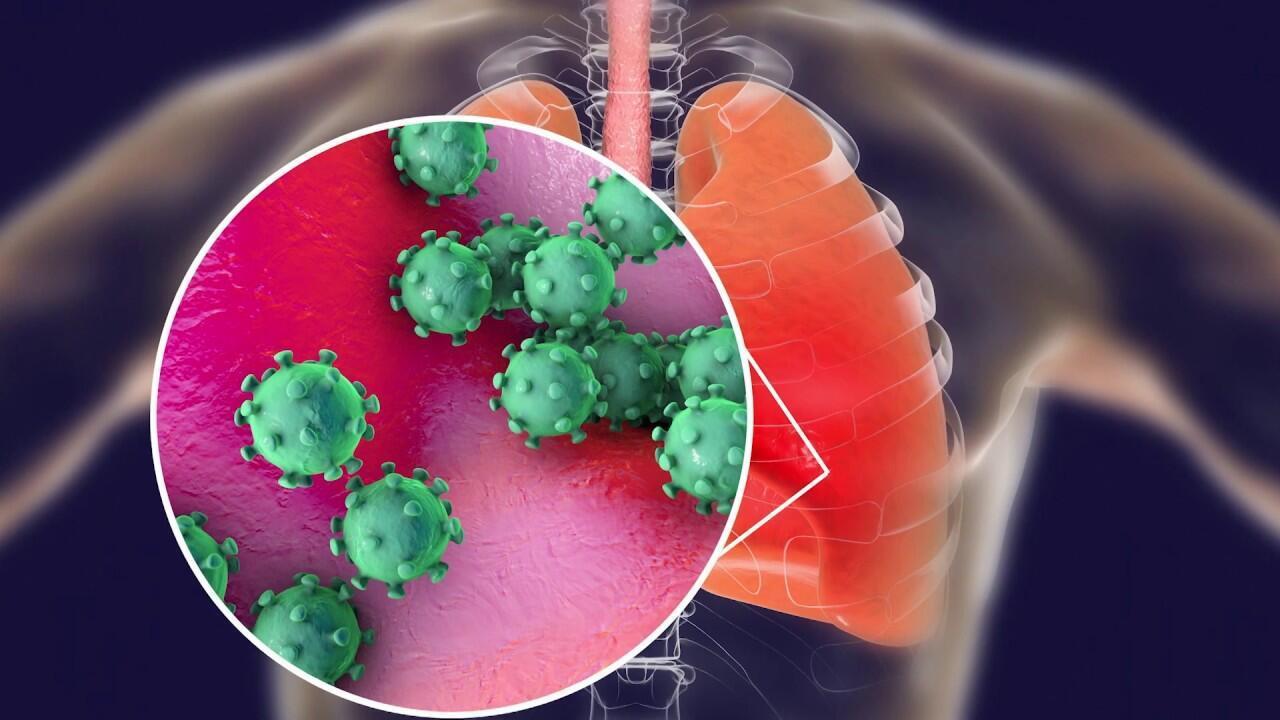 圖為新冠肺炎病毒臨床病理圖