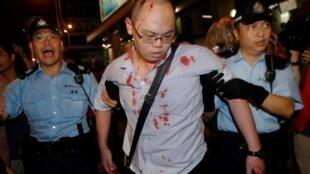 一名親民主示威者遭毆打後警察協助他撤離2014年10月3日香港旺角